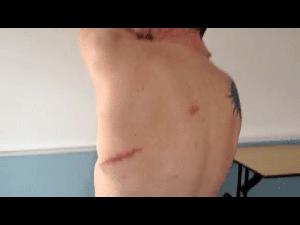 EFT: Upper Back Pain after Cancer Operation Gone